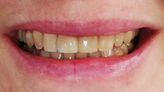 after restorative dentistry - Easton PA