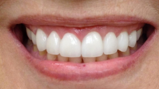 college hill veneers